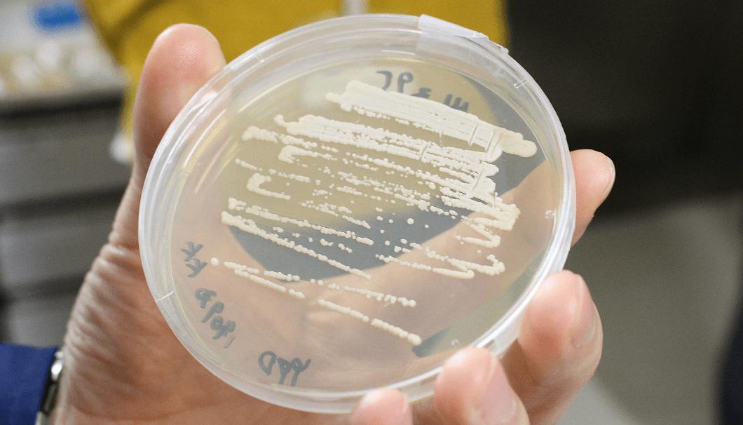 シャーレで培養されている酵母